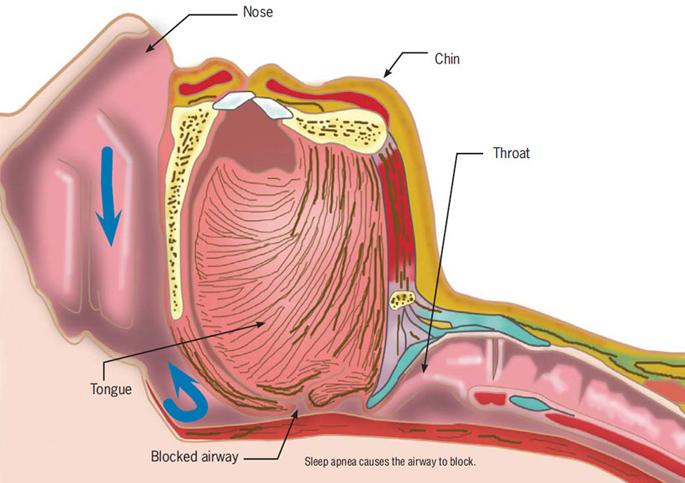 Nirved Breathing Solutions- Philips CPAP, Philips BiPAP, Sleep study ...
